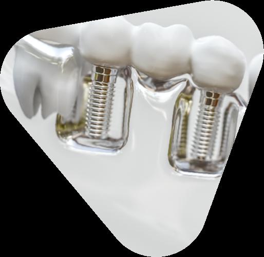 Dentalprothetik